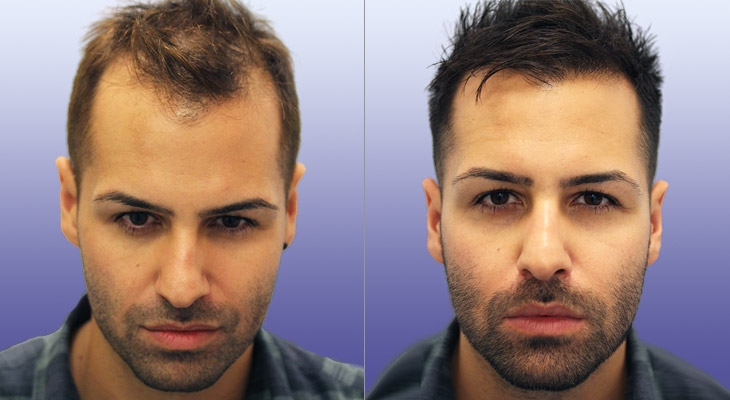 Going To Turkey For A Hair Transplant? You Have Nothing To Worry About